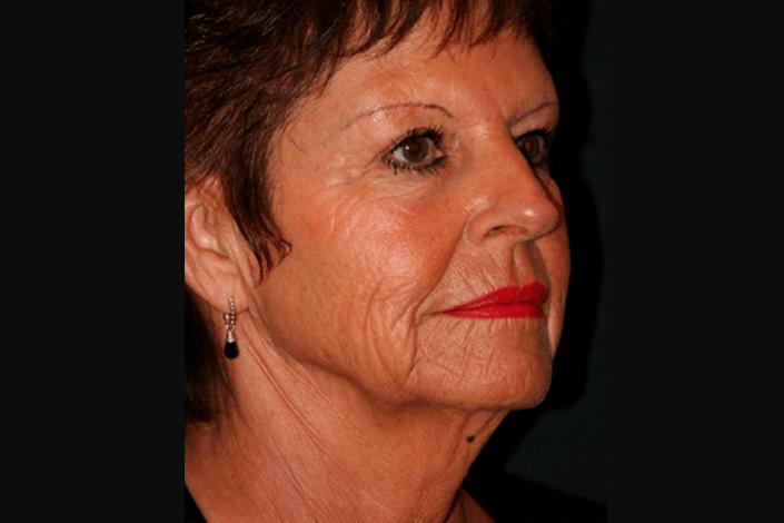 ansigtsløftning-før billede