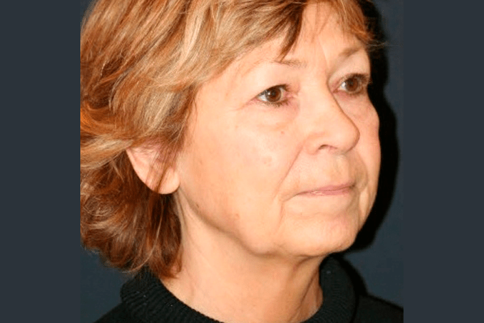 Ansigtsløftning 2 - før billede